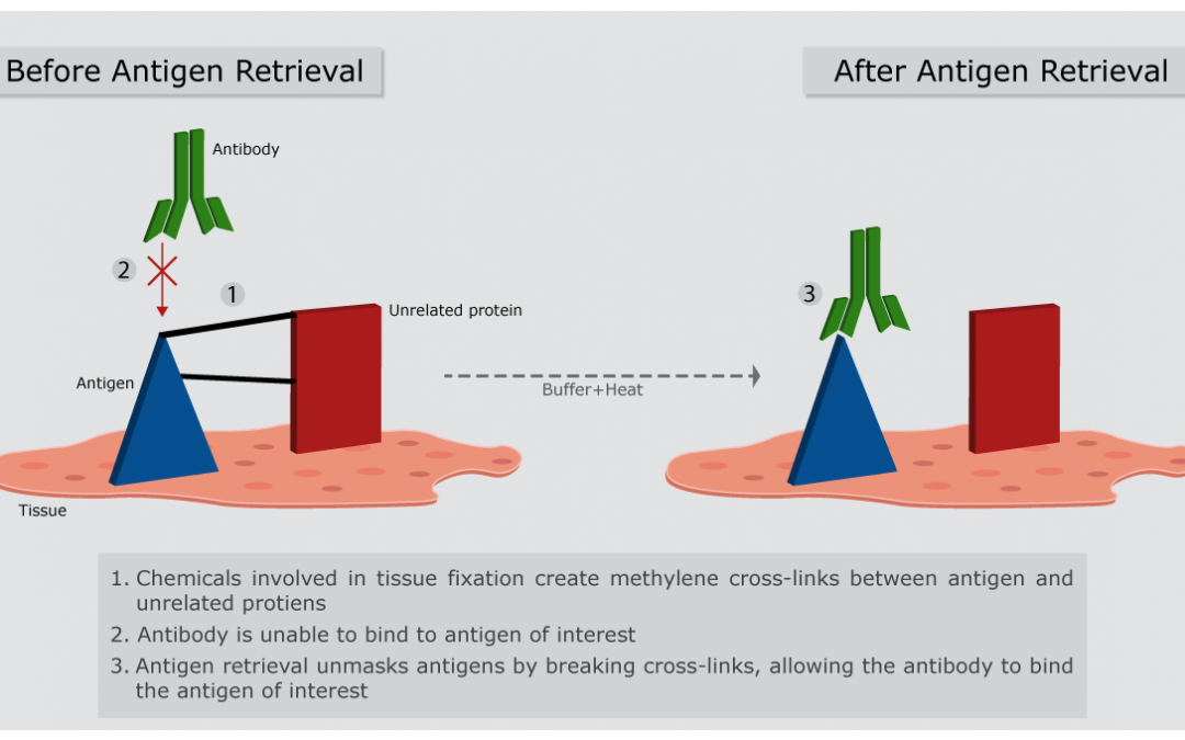 Antigen retrieval and how does it work