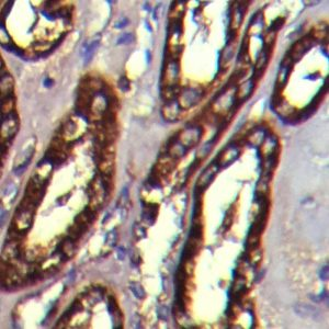 IHC on Liver Tissue