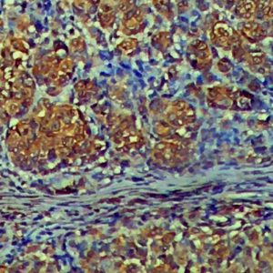 IHC on Lymph Node Tissue