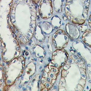 IHC on Kidney Tissue
