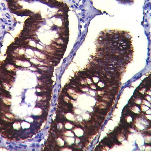 IHC on Appendix Tissue